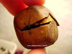 gall stone - gall stone