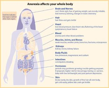 Anorexia affects the whole body. - Anorxia health chart