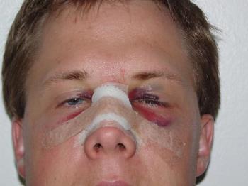 Broken Nose - My shatter nose after surgery