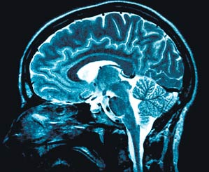 Brain - Brain