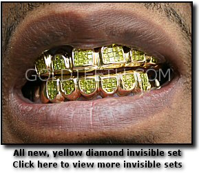 teeth - gold ones
