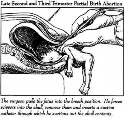 abortion - abortion