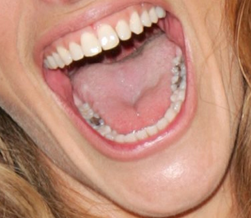 Julia Roberts - Julia Roberts has the mouth that seems a money box