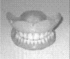 Dentures - Dentist