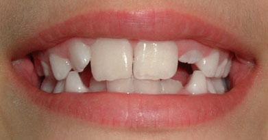 dente - dente