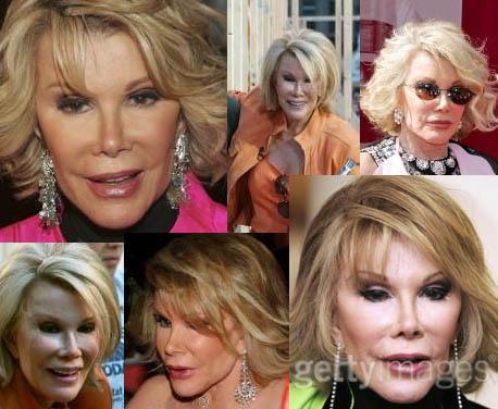 Joan Rivers plastic surgery - Has Joan taken it to far?