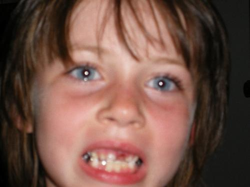 Help me! - This photo depicts the loss of her tooth naturally. It was when she lost the first of the two front teeth. She still has tons of cavities and fillings. She is in the process of having two root canals done. When she was three she got the first of three caps put on her teeth.