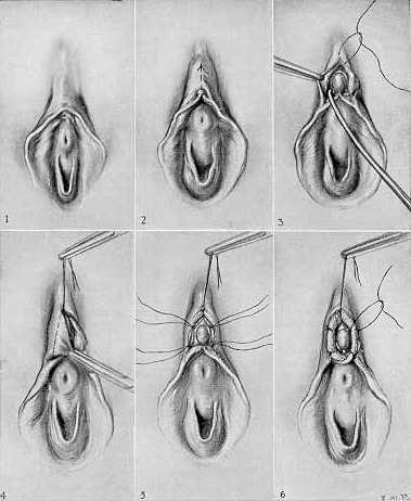 Drawings erectile body female clitoris