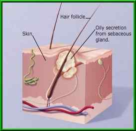 Acne - A diagram showing how acne forms.