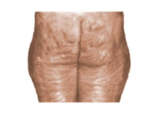 Cellulite - Cottage cheese anyone?