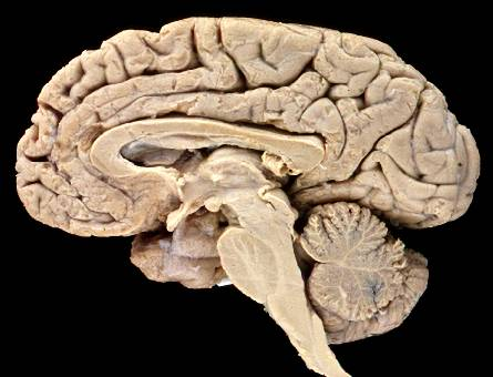 brain - human brain