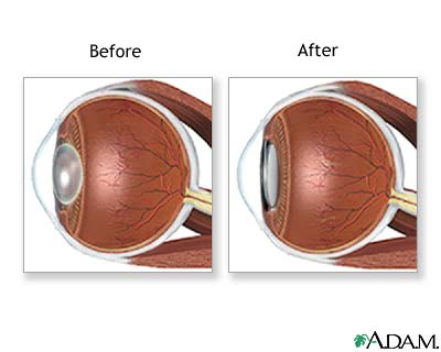 Before and After Cataract Surgery - Cataract Surgery