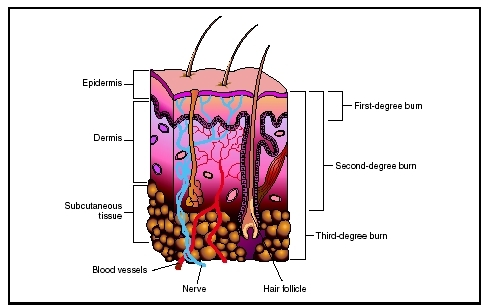 These are three classifications of burns - Hi friends, there are 3 classification of burn 1. A first degree burn causes redness and swelling in the outermost layers of the skin. 2. A second degree burn involves redness, swelling, and blistering. The damage may extend to deeper layers of the skin 3. A third degree burn destroys the entire depth of the skin. It can also damage fat, muscle, organs, or bone beneath the skin. Significant scarring is common, and death can occur in the most severe cases.