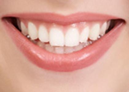 teeths - white teeths