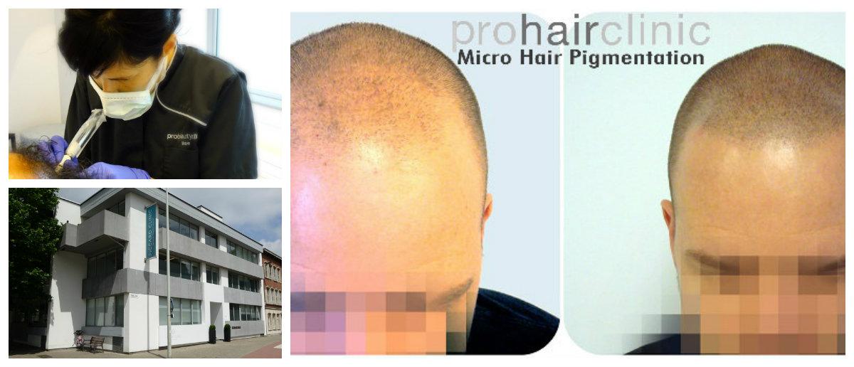 Micro Scalp Pigmentation