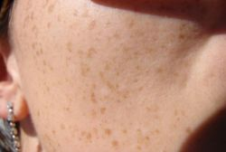 """freckles - Upon exposure to the sun, freckles will reappear if they have been altered with creams or lasers and not protected from the Sun, but do however fade with age in some cases. Freckles are not a skin disorder but genetic. People with a predisposition to freckles may be especially susceptible to sunburn and skin cancer, and should therefore take extra care to protect themselves in the sun with a daily sunblock of at least 15 SPF.  In dermatology, the synonym ephelides is used to designate freckles.  Many people find freckles appealing, and at the extreme can have a fetish for them. """"Freckle fetishists"""", who can be male or female, may also be fixated on freckling at particular locations of the body: shoulder-freckles, cheek-freckles, back-freckles, or other locations and combinations. Because freckles are sometimes closely genetically linked to red hair, freckle fetishism can also have redhead fetishism and trichophilia.-- wikipedia"""