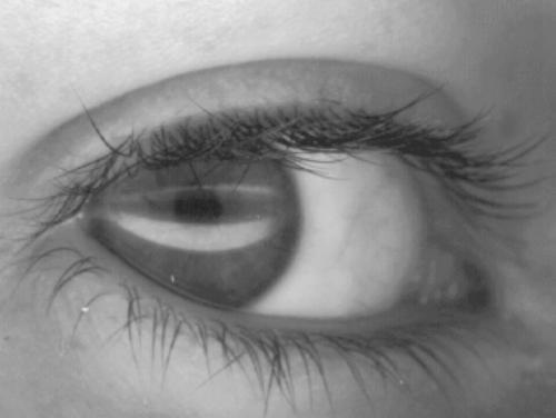 eyes - eyes